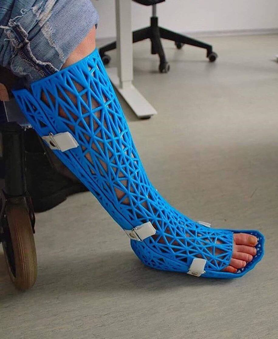 3D Printed Cast for Support while Standing