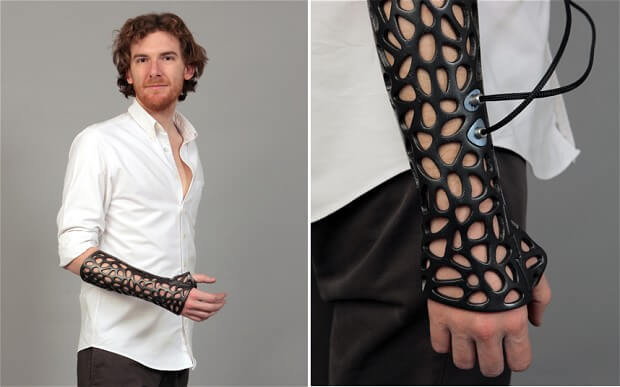Plastic Cast for Healing Bones through Ultrasound