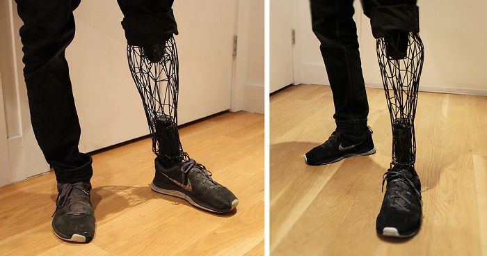 Titanium 3D Printed See Through Prosthetic